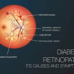 Diabetic Retinopathy Part 1: Its Causes and Symptoms
