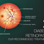 Diabetic Retinopathy Part 2: Our Recommended Treatments