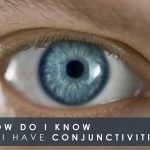 How Do I Know If I Have Conjunctivitis?