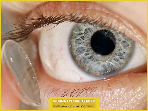 Important Tips for Preventing Contact Lens Infections